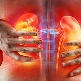 Kidney Stones – Ouch! My Kidneys are Killing Me!