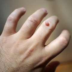 How Can I Cure Warts?